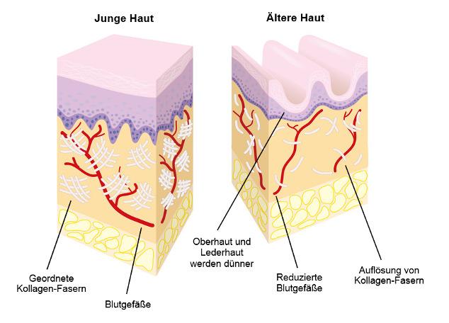 Hautalterung durch UV-Strahlen
