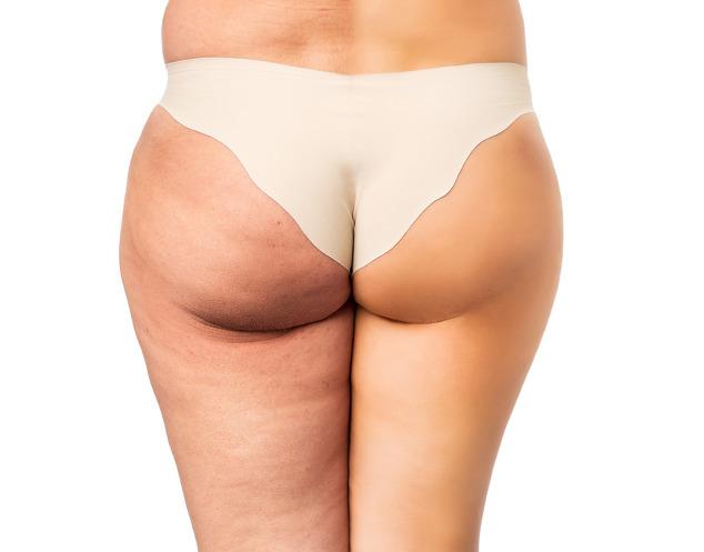 Cellulite-Stadien