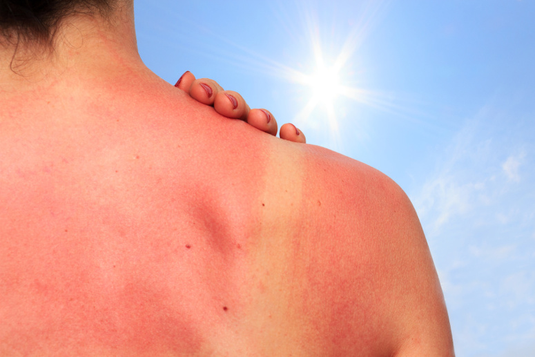 Sonnenbrand