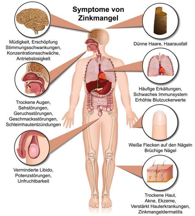Zinkmangel Symptome